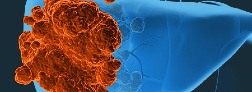 behandlung leberkrebs lebenserwartung